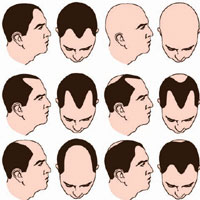Male Baldness Pattern on Male Pattern Baldness  What Is It And How Is It Treated