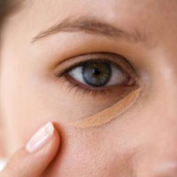 What Causes Dark Circles