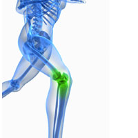 Looking for Signs of Osteochondritis Dissecans