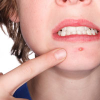Acne Scar Prevention and Pimple Treatment
